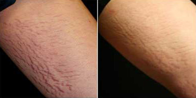 before_and_after_stretchmarks.159202652_std