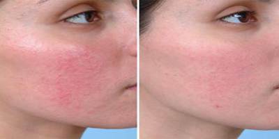 rosacea_before_and_after